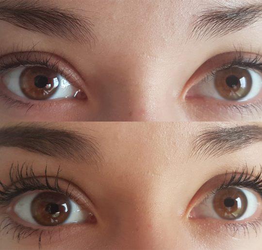 Auge 3